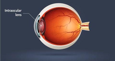 Tratarea cataractei